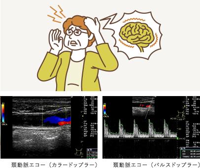 atherosclerotic_stroke